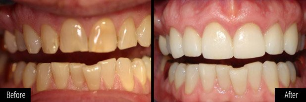 dental-veneers-results