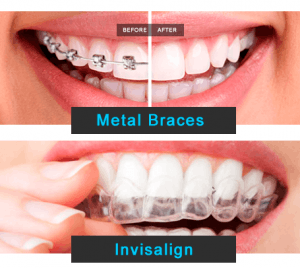 Braces, Before-After