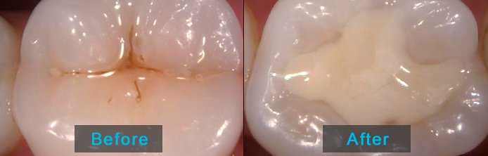 Before After - Dental Filling