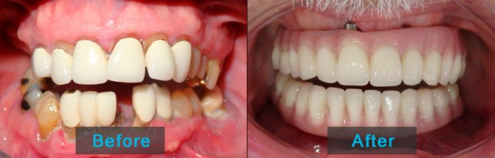 Before After - Dentures