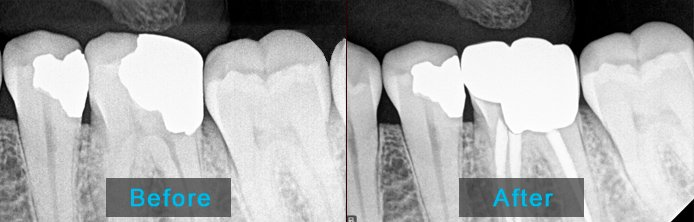 Before After Root Canal