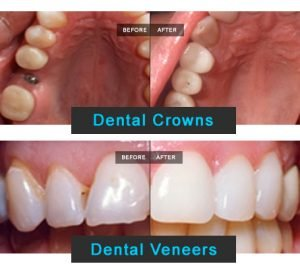 Dental Crowns, Before - After