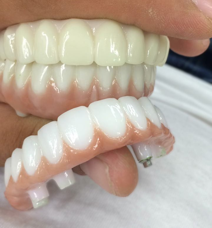 dentures dental work