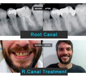 root canal. before - after