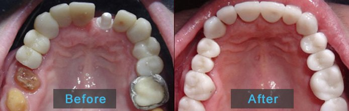 Before after crowns and bridges