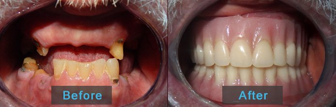 Before After Denture