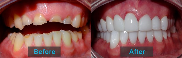 Before after - full mouth restoration