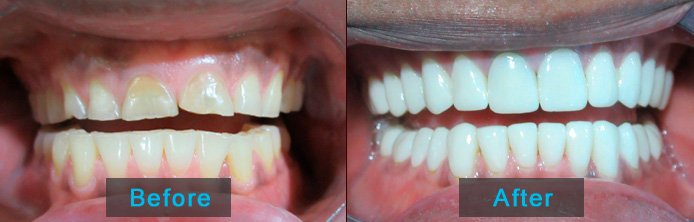 Full mouth restotration before after