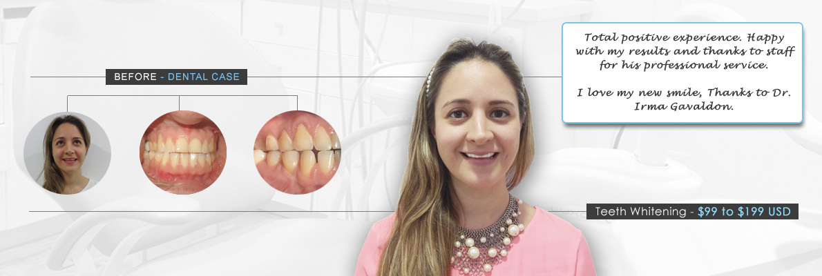 dentistry cancun