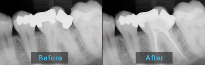 Before After - Root Canal